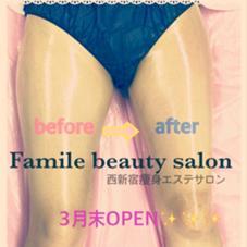 1回の施術で効果を実感できるエステサロン✨ラジオ波痩身&美顔&水素吸引などメニューも豊富です!!西新宿のエステサロン