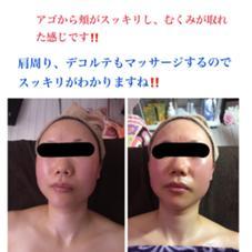 造顔筋マッサージ&フォト美顔器コース大人気です!