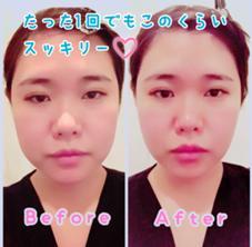 美骨矯正 & Eyelash  SUTEKI pro  新宿所属のYamadaRisa