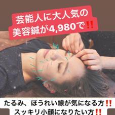 一度で小顔に!美容鍼⭐️ボディーオイルマッサージでむくみ・凝りを解消!⭐️フェイシャル⭐️全身の鍼治療&マッサージ治療⭐️