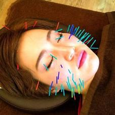 美容鍼灸 整体 HARIS所属のshim