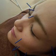 美容鍼で美肌を✨美容整体で身体の調整を✨オイルトリートメントでリラクゼーションを✨