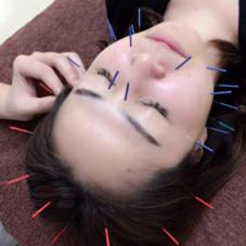 やまだ鍼灸接骨院(やまだしんきゅうせっこついん)所属の山田晃