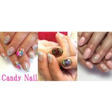 Candy★Nail所属の伊藤 千恵