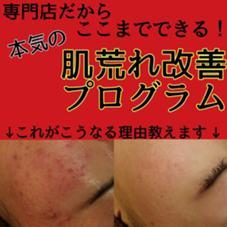 肌質改善専門店accueil池袋店所属の吉田幸菜