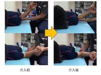 肩甲上腕関節可動域改善のためのワンポイント|千葉慎一先生