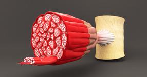 高齢者の筋内脂肪の蓄積、サルコペニアと運動機能低下に関係か