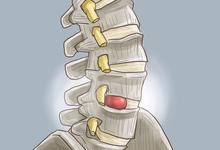【連載】腰椎椎間板ヘルニアの診断。理学療法が始まるが… - 慢性痛クリニカルリーズニング -