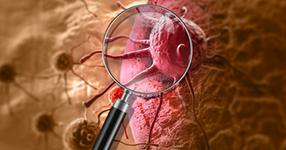乳がん後に有効な理学療法とは?【論文から学ぶエビデンス】