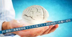 【マウスから人へ】ヒトiPS細胞由来の神経細胞 マウスの脳の海馬上で培養に成功