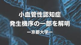 小血管性認知症 発生機序の一部を解明