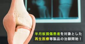 【国内初】半月板損傷患者を対象とした再生医療等製品の治験開始!