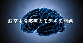 脳卒中後疼痛のモデルを開発 | 視床痛アロディニアの回復促進へ