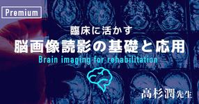 臨床に活かす脳画像読影の基礎と応用-その1- 【高杉 潤先生|千葉県立保健医療大学】
