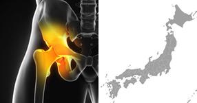 大腿骨骨折発生頻度の地域差、最大で2倍程度