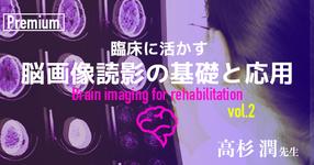 CT読影の前の4つのチェックポイント【千葉県立保健医療大学|高杉潤先生】