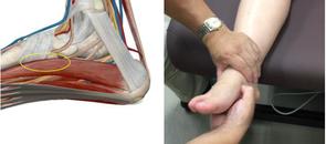 快適にハイヒールやパンプスを履きこなすための足作り(リアライン・フット)