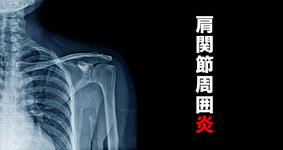 肩関節周囲炎とは