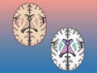 【完全商用フリー素材】自由に動かせる脳画像(水平断)ダウンロード