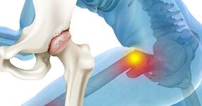 股関節症と頚部骨折、どちらの術後リハビリが大変か