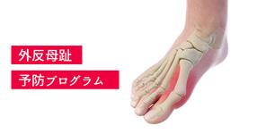 【外反母趾予防プログラム】イマイの足をチェックしてきました結果は左足が…