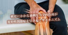 変形性関節症と軟骨にかかる力学的負荷の関連性|AMED
