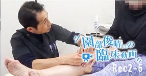 【Rec2-5】園部俊晴先生の臨床動画