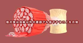 筋の質は加齢以外の要因でも低下することを示唆 | 名古屋大学