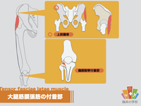 【イラスト】大腿筋膜張筋の起始・停止とストレッチ