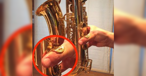 サックス奏者はなぜ右母指に疼痛を訴えるのか【理学療法士|山本篤先生】