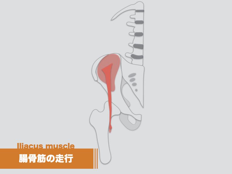 靭帯 鼠径 鼠径靭帯炎について教えて下さい。原因は何ですか?検査方法も教えて下さい。あ