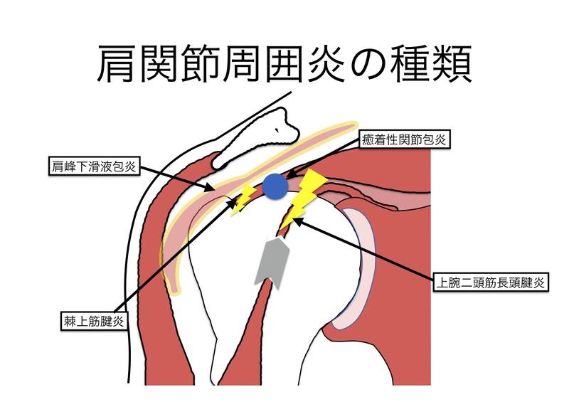 周囲 炎 関節 肩
