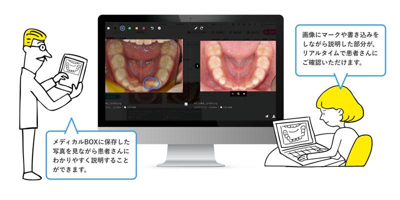 事前に撮影した画像や動画を共有しながらオンライン診療ができます