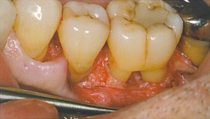 図3 術中の下顎左側第一大臼歯頬側のClassⅡ根分岐部病変