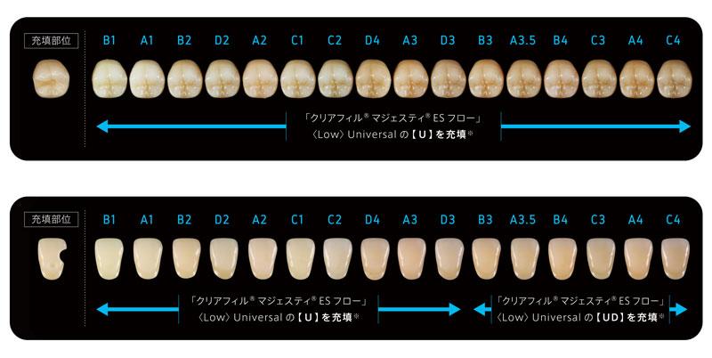 ●従来の特長はそのままに、1色で幅広い天然歯に対応