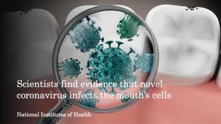 口腔の細胞が新型コロナウイルスに感染することが判明 米国の画像です