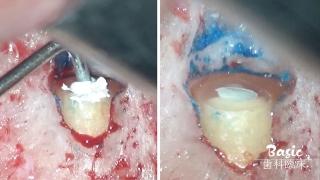 外科的根管治療を臨床にプラスしよう!  第1回「ここからチャレンジ・上顎切歯」の画像です