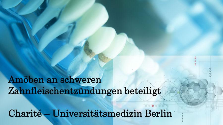歯肉アメーバによる歯周組織破壊を初めて証明 ドイツの画像です