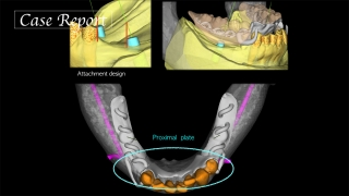 デジタルとアナログの相互補完により、多数歯欠損に対してインプラントを用いて咬合再構成を行った症例の画像です