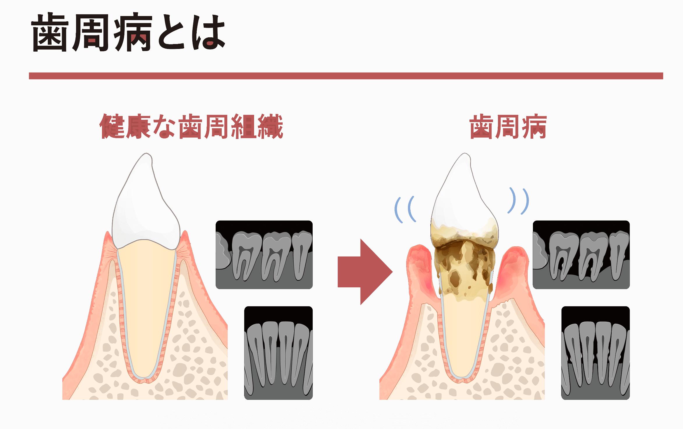 お役立ちツールに歯周病を説明するためのツールが加わりました
