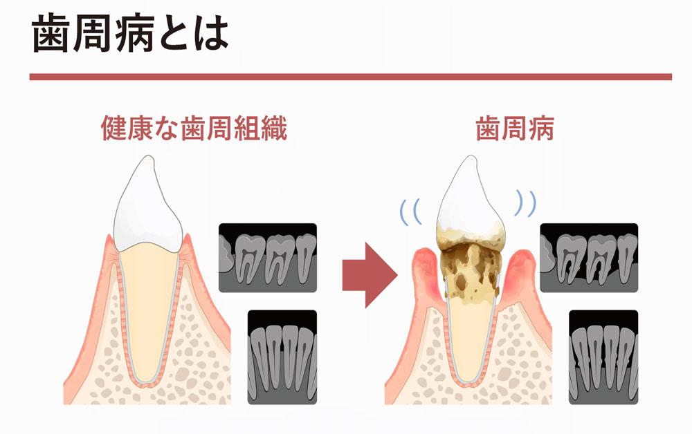 お役立ちツールに歯周病を説明するためのツールが加わりました。の画像です