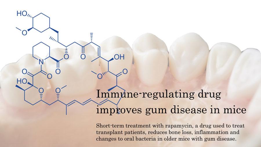 免疫抑制剤による歯周病の改善 米国ワシントン大学の画像です