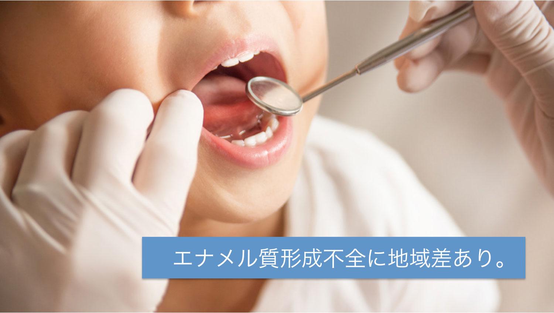 エナメル質形成不全の有病率、西高東低の地域間差 富山大・小児歯科学会の画像です