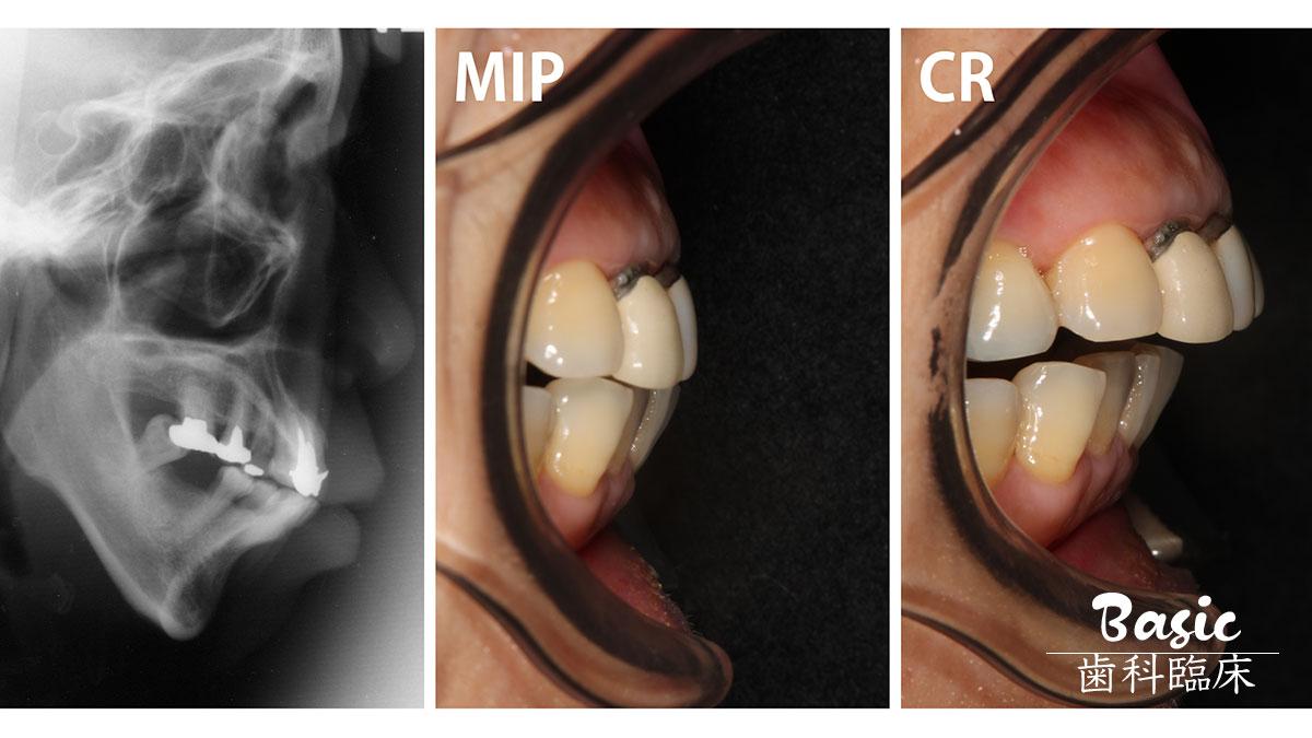 【K-Projectプロデュース】全顎治療時に取り入れたい3つの習慣③ 治療を開始する前に顎位をチェックしようの画像です