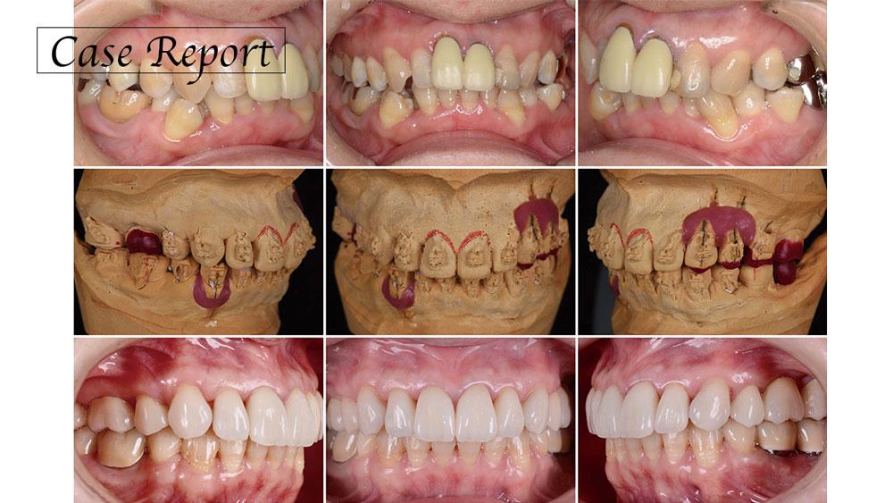 審美障害の改善と咬頭嵌合位の安定のために矯正治療を用い咬合再構成を行った症例の画像です