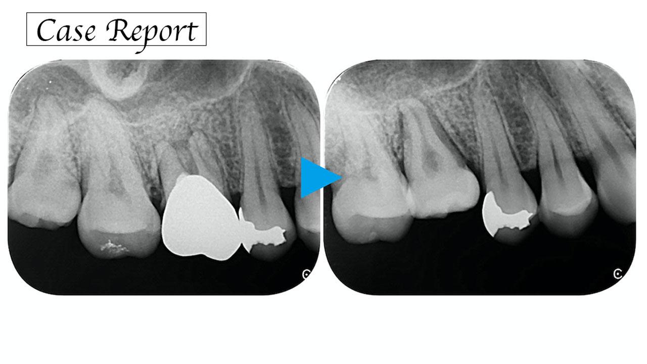 自家歯牙移植は欠損補綴のオプションとして有効か? ―自家歯牙移植ならではの優位性を考える―の画像です