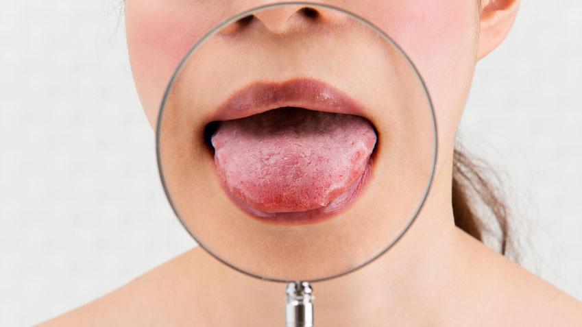 唾液で血糖値を測定できる画期的なバイオセンサー 豪州の画像です