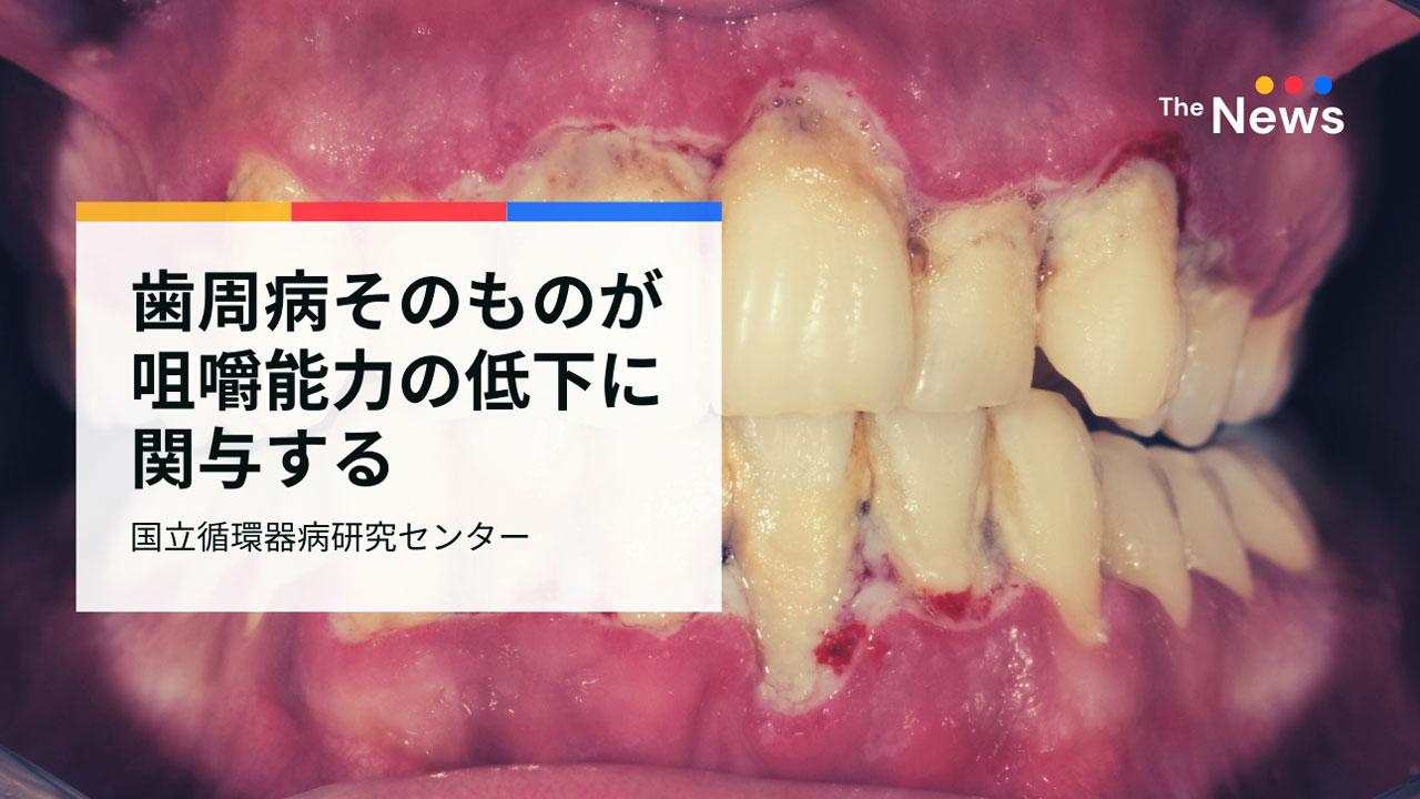 歯周病の進行は、歯の数に関係なく咀嚼能力を低下させる 国立循環器病研究センターの画像です
