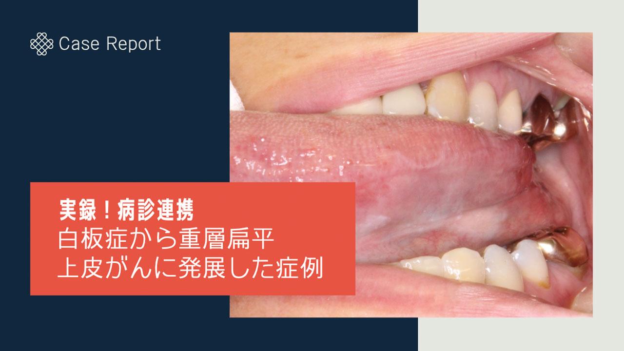 [実録!病診連携]白板症から重層扁平上皮がんに発展した症例の画像です