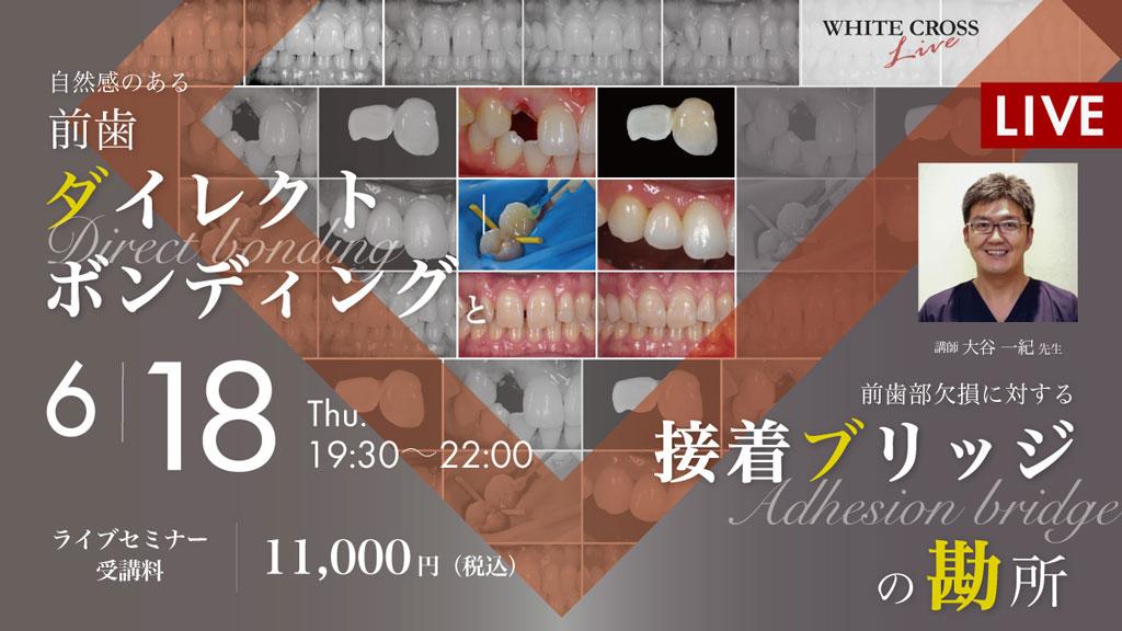 自然感のある前歯ダイレクトボンディングと、前歯部欠損に対する接着ブリッジの勘所【ライブセミナー】の画像です